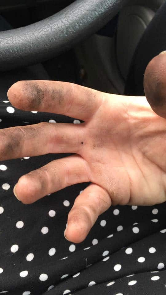 Emily's hand